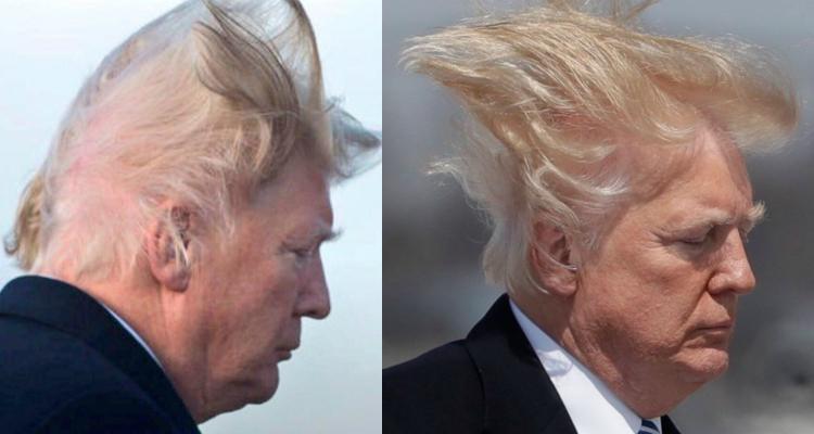 Where Did Trump Get That Hair?